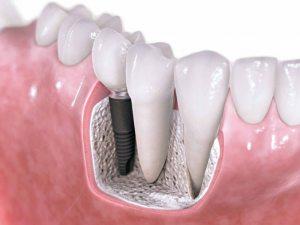 implante-dental-boka-bela